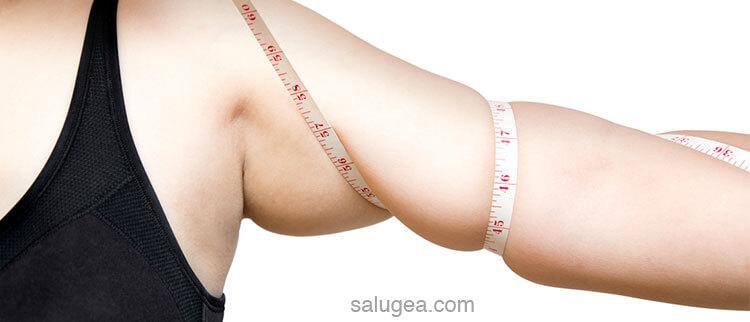 Cellulite sulle braccia