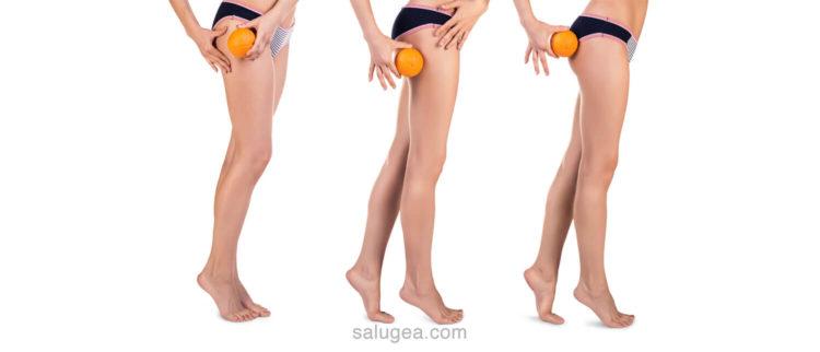 i tipi di cellulite